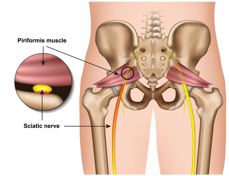 Use These Acupressure Points For Sciatic Pain One Community Acupuncture Center Barlett Il
